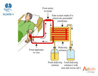 Citrato seca hemodiálisis Concentrado -