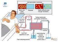polvo seco hemodiálisis -