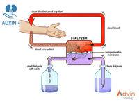 El fluido hemodiálisis -